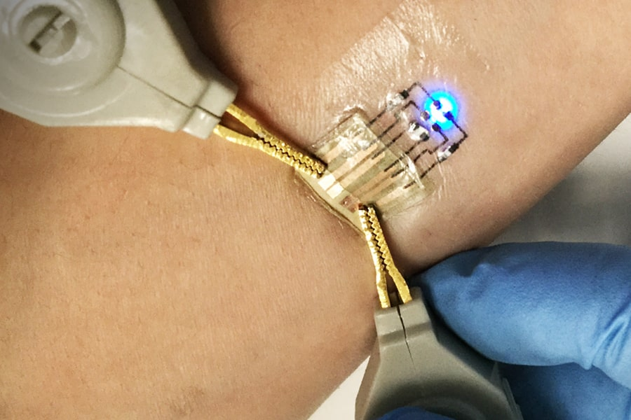 Images of electronic implant on skin