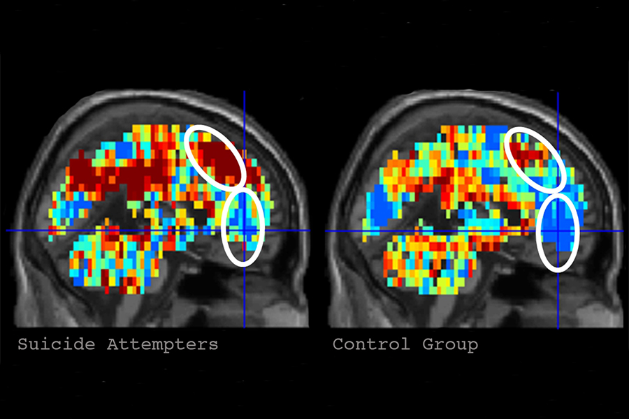 CMU, Pitt Brain Imaging Science Identifies Individuals With Suicidal