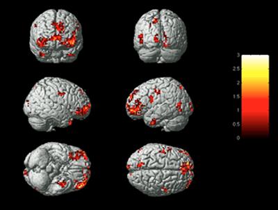 BrainActivityOnEmotions