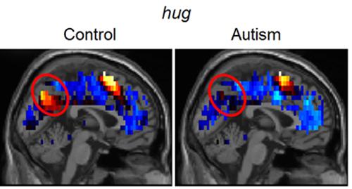 hug brain images