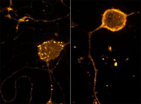 endosomes