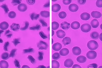Sickle Cell Blood Cells