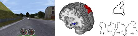 brain images